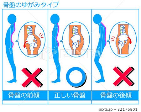 「反り腰 フリー素材」の画像検索結果
